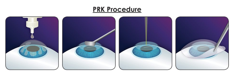 Photorefractive Keratectomy