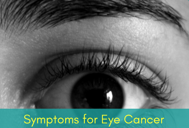Symptoms of Eye Cancer
